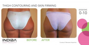 thigh contouring and skin firming