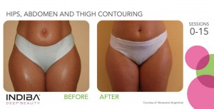hips, abdomen and thigh contouring
