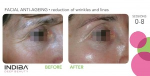 reduction of wrinkles and lines