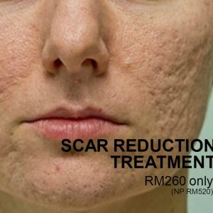 Scar Reduction Treatment