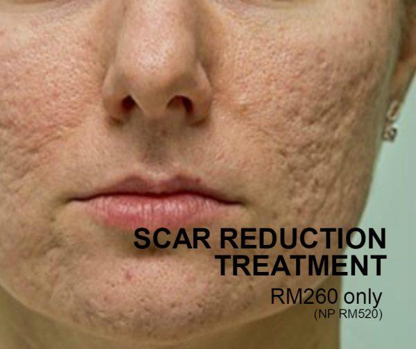 Scar Reduction Treatment
