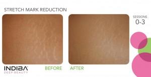 stretch mark reduction