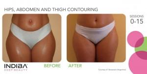 hips, abdomen and thigh contouring