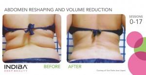 abdomen reshaping and volume reduction