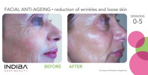 reduction of wrinkles and loose skin