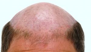 hair-loss-male-balding