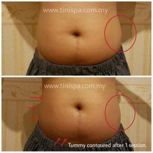 tinispa testimoni tummy contouring1